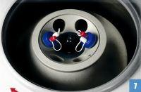 ARTHREX centrifuge balanced for ABPS preparation